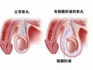 睾丸扭转预防方法有哪些